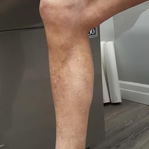 at 6 months - after vein avulsion